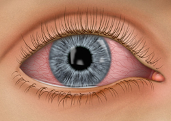 pink eye, conjunctivitis, eye infections