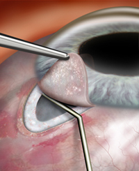 Trabeculectomy, glaucoma eye surgery, glaucoma surgery